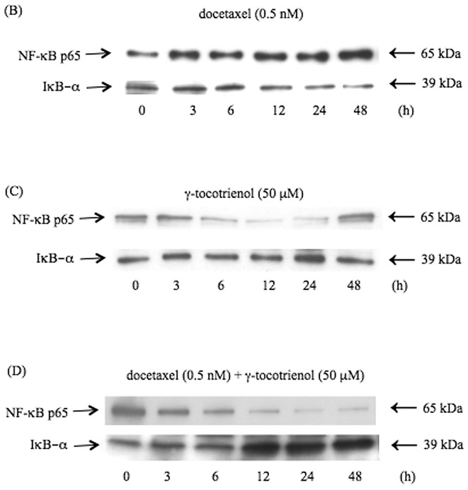 (A) Effects of docetaxel and γ-tocotrienol on the NF-κB DNA binding activity in B88 cells. Cells were treated with docetaxel (0.5 nM), γ-tocotrienol (50 μM) and docetaxel (0.5 nM) + γ-tocotrienol (50 μM) for 24 h, and nuclear extracts were prepared and analyzed by EMSA with the κB site from the κ-light-chain enhanced in B cells. The docetaxel treatment of cells stimulated the constitutive NF-κB activity, while γ-tocotrienol inhibited constitutive NF-κB activity in B88 cells. Moreover, simultaneous treatment with both agents greatly suppressed the docetaxel-induced NF-κB activity in the cells. The specificity of the complex was analyzed by incubation with an excess (100-fold) of unlabeled κB oligonucleotides (competitor). (B) Effect of docetaxel (0.5 nM) on the expression of p65 and IκB-α proteins in B88 cells. Nuclear and cytoplasmic extracts were prepared from cells following docetaxel treatment for the indicated time points and analyzed by western blot analysis. The expression of nuclear p65 was augmented by docetaxel at 12, 24 and 48 h after treatment, and cytoplasmic IκB-α expression was conversely inhibited at these time-points. (C) Effect of γ-tocotrienol (50 μM) on the expression of p65 and IκB-α proteins in B88 cells. The expression of nuclear p65 protein decreased at 12 and 24 h after treatment, and cytoplasmic IκB-α expression was conversely enhanced at these time-points. (D) When the cells were treated with both agents, a significant decrease in nuclear p65 protein expression was detected in a time-dependent manner, whereas cytoplasmic IκB-α protein expression was similarly enhanced in a time-dependent manner.