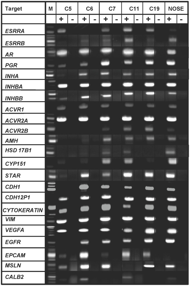 Expression of genes in chicken ovarian cancer cells (COVCAR) and normal ovarian surface epithelial cells (NOSE). RT-PCR analyses for expression of various cytoskeletal proteins, growth factors and receptors, protein/enzymes related to steroid hormone synthesis, gonadal hormone and hormone receptors in chicken ovarian cancer cell lines (C5, C6, C7, C11, C19) and normal ovarian surface epithelial cells (NOSE; n = 5 animals). Total RNA was extracted from cultured cells in passages 3–4 and treated with deoxyribonuclease-I. Approximately 250 ng of cDNA (+RT) was used as template to amplify the gene products. Contamination controls consisted of reverse transcribed RNA without reverse transcriptase (-RT). M- DNA size marker.