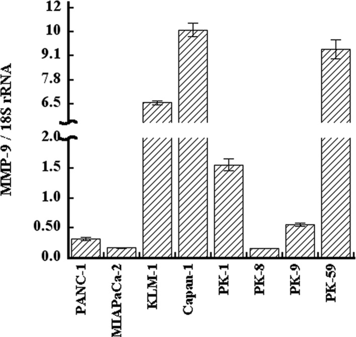 qRT-PCR analysis of MMP-9 in pancreatic cancer cells. Total RNA was extracted from eight pancreatic cancer cell lines and qRT-PCR was performed. MMP-9 mRNA was expressed in all the cancer cell lines at varying levels, and the expression levels had the highest measurements in Capan-1.
