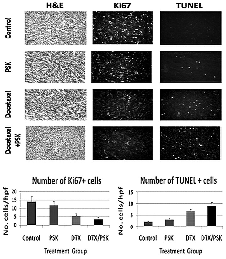 Ki67 and TUNEL expression in tumors treated with docetaxel and PSK. Mice with established prostate tumors were treated with oral saline daily, oral PSK (300 mg/kg) daily, i.p. docetaxel injection (2x weekly) or a combination of PSK and docetaxel for a period of 10–12 days. Tumors were stained for the Ki67 proliferation marker and TUNEL expression. Shown are representative staining results and summary graphs showing the number of tumor cells positive for each marker (mean ± SEM) viewed at magnification ×40 for a total of 10 views in each of 6–8 tumors (hpf, per high powered field; H E, hematoxylin and eosin staining). Combining PSK with docetaxel induced a reduction in proliferating Ki67 + cells compared to docetaxel alone (p