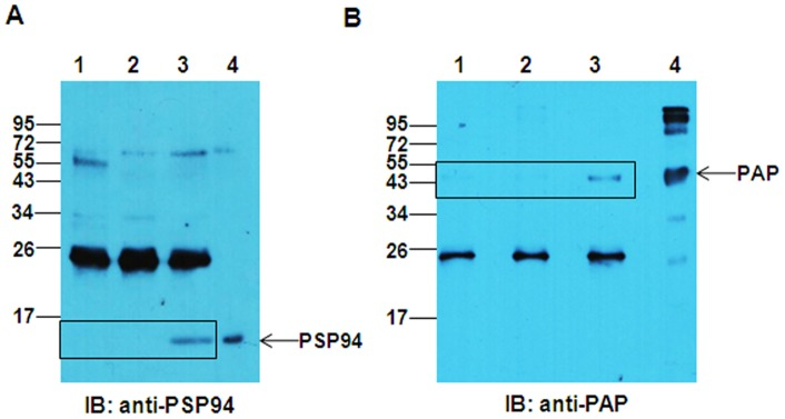 Co-immunoprecipitation of PSP94 and PAP proteins from fraction III. A. PSP94-PAP complex from fraction III (50 µg) co-immunoprecipitated with anti-PAP antibody showing the presence of PSP94 (lane 3). Protein G beads incubated with either fraction III in buffer alone (lane 2) or fraction III incubated with mouse isotype control antibody (lane 1) served as controls. 10 µg of fraction III was loaded in lane 4 as input and the immunoblot was probed with anti-PSP94 antibody. B. PSP94-PAP complex from fraction III (50 µg) was co-immunoprecipitated with anti-PSP94 antibody showing the presence of PAP (lane 3). Protein G beads incubated with either fraction III in buffer alone (lane 2) or fraction III incubated with normal rabbit serum (lane 1) served as controls. 10 µg of fraction III was loaded in lane 3 as input and the immunoblot was probed with anti-PAP antibody. Molecular weight markers shown are in kDa.