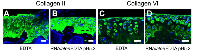 Fluorescent immunohistochemistry of articular cartilage. Collagen II (A, B) and collagen VI (C, D) protein localization was unaffected by RNA later /EDTA, pH 5.2 decalcification (B, D) compared to conventional EDTA decalcification (A, C). Using both methods collagen II can be seen in both the pericellular and extracellular matrix, while collagen VI is predominantly localized to the pericellular matrix. DAPI was used as a nuclear stain. Scale bars = 50 µm.