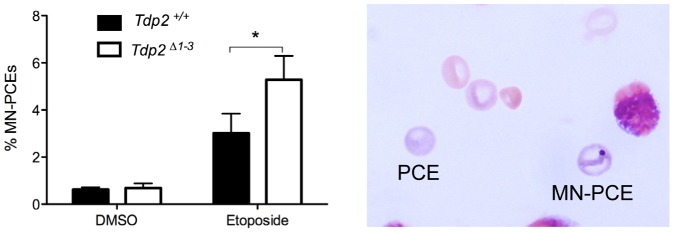 The absence of TDP2 increases etoposide-induced genome instability in vivo . Percentage of micronucleated polychromatic erythrocytes (MN-PCE) among the total number of polychromatic erythrocytes (PCE), examples of which are shown (right), in bone marrow smears of wild-type and Tdp2 Δ1–3 mice 24 h after intraperitoneal injection of 1 mg/kg etoposide or vehicle (10% DMSO). Average ± s.e.m. of 4 (DMSO) and 6 (VP16) animals and statistical significance by paired T test is shown.