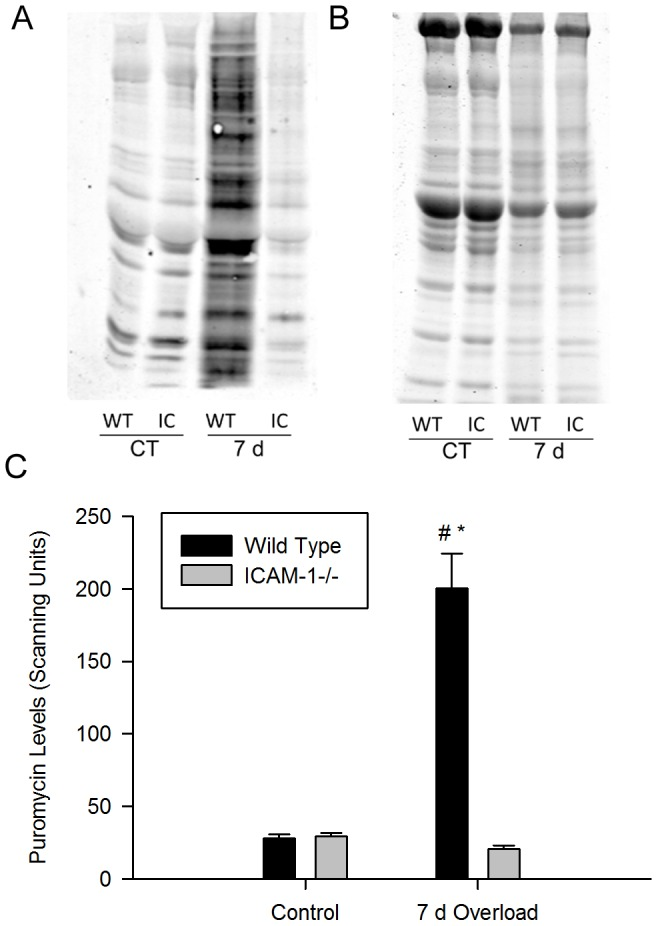 Protein synthesis, measured using the nonradioactive SUnSET technique, in plantaris muscles. A) Representative western blot (50 ug of protein/lane) of puromycin in control (CT) and 7 d overloaded muscles of wild type (WT) and ICAM-1-/- (IC) mice. B) Coomassie blue stained 10% SDS PAGE gel containing the same samples shown in panel A. C) Quantitative analysis of the relative abundance of puromycin incorporation into proteins (n = 7-8/group). #, significant interaction at 7 d of overload. *, significantly elevated at 7 d of overload compared to controls for wild type mice.