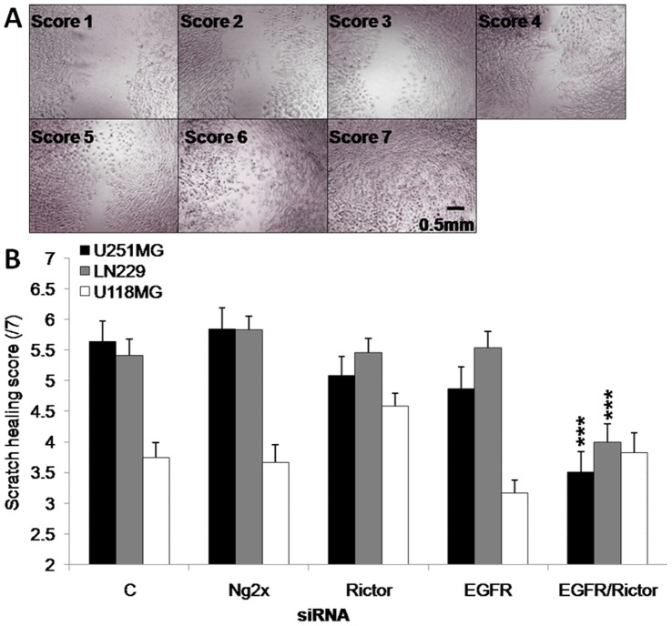 The combination of EGFR and Rictor silencing results in a reduction in cell migration. a ) Example of scoring chart for the scratch-wound healing assay. b ) Scratch width scoring of U251MG, U118MG and LN229 cells 96 hrs after transfection of siRNA against Rictor, EGFR, the combination of Rictor and EGFR or the combination of two negative control sequences (Ng2x), obtained from three independent experiments. ***p-value ≤0.001 compared to untreated cells.