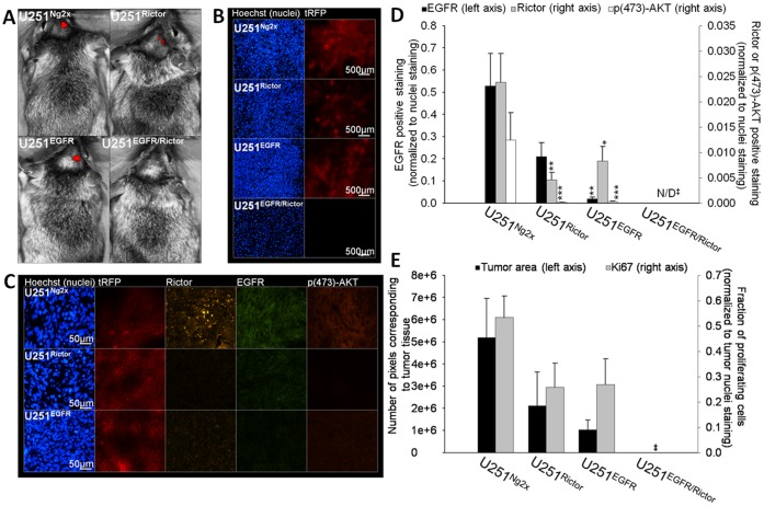 The combined silencing of Rictor and EGFR in vivo results in a complete inhibition of tumor growth. U251 Ng2x , U251 Rictor , U251 EGFR and U251 EGFR/Rictor cells were implanted into the right caudate nucleus-putamen of Rag2M mice (n = 6−8). Induction of shRNA expressi on in mice was initiated on day 21 by dissolving 2 mg/mL doxycyline and 5% sucrose in drinking water. a ) On day 49, animals were imaged by Maestro™ fluorescence imaging unit for the expression of tRFP co-expressed with the shRNA sequences upon doxycycline-induced expression. Mice were then terminated and brains were harvested, sectioned and stained for nuclei, Rictor, EGFR and p(473)-AKT and imaged for all markers in addition to tRFP by robotic fluorescence microscopy. No tumor was detected in the U251 EGFR/Rictor group. b ) A representative brain section from U251 Ng2x , U251 Rictor , U251 EGFR and U251 EGFR/Rictor tumor groups is shown: tRFP (red) and Hoechst (blue). c ) A representative tumor section from U251 Ng2x , U251 Rictor and U251 EGFR tumor groups is shown: nuclei (blue), rRFP (red), Rictor (yellow), EGFR (green) and p(473)-AKT (orange). d ) The expression of EGFR (left axis), Rictor (right axis) and p(473)-AKT (right axis) in U251 Ng2x , U251 Rictor , U251 EGFR tumor sections were quantified (positive staining normalized to Hoechst nuclei staining). e ) Tumor sizes were estimated by quantification of tumor areas in brain sections from all groups (left axis). The expression of the proliferation marker Ki67 in the tumor (proliferating fraction) was also quantified (right axis). *p-value ≤0.05; **p-value ≤0.01; ***p-value ≤0.001 compared to control untreated cells. ‡: No tumor was detected in the U251 EGFR/Rictor group.