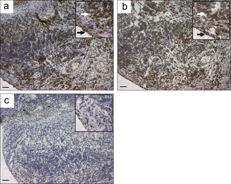 Immunohistochemical localization of citrullinated proteins in synovial tissues of RA patients. (a and b) Immunohistochemistry using two of the recombinant citrulline-specific antibodies, 1276SF-D10 (a) and 1325SF-B109 (b), brown staining of both the lining (black arrows) and sublining (white arrows) layers in an inflamed synovial biopsy, obtained at the time of joint arthroplasty from a RA patient. (c) Staining of a matched irrelevant IgG2a-negative control used at similar concentration. Insets show the same samples at higher magnification. Similar results were observed in two other RA synovial tissues (not depicted). Data presented in this figure are representative of three independent experiments from four patients. Bars, 68 µm.
