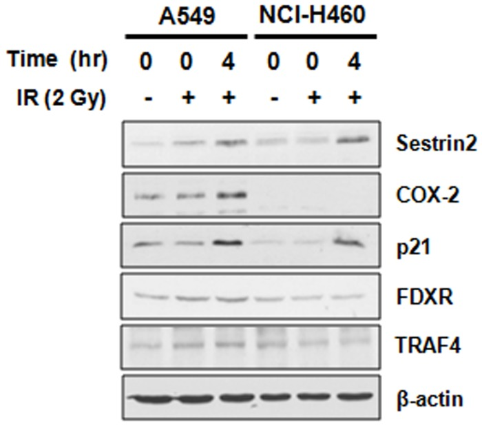 Protein expression of candidate genes for radioresistance-associating factors in NSCLC cells. IR-altered expression of Sestrin2, TRAF4, p21, COX-2 and FDXR was assayed by western blot analysis. The results were confirmed by three independent experiments.