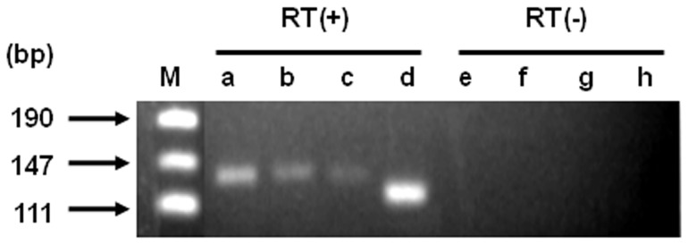RT-PCR analysis in S. pneumoniae R6. One ng total RNA was used for the template for one reaction of RT-PCR, and the reaction was repeated for 24 cycles. pUC19 digested with Msp I was used as a size marker (lane M). pdrM (lane a, e), spr1756 (lane b, f), spr1877 (lane c, g). The expression of the atpB was used as an internal control (lane d, h). Reverse transcriptional reactions were submitted on samples in lane a, b, c, and d, and were not on samples in lane e, f, g, and h.
