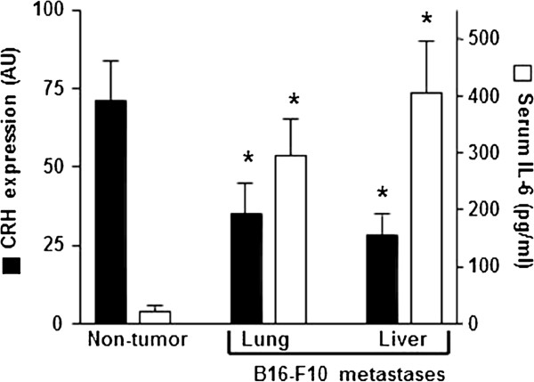 CRH expression and serum IL-6 levels in non-tumor- and B16-F10 (metastases)-bearing mice. Measurements were performed in non-tumor-bearing and in tumor-bearing mice (7 days after inoculation). mRNA expression of CRH in the hypothalamic PVN was evaluated as described under Materials and methods. CRH expression data (optical density arbitrary units, AU), measured at 0 h (circadian time, see Figure 1 ), are expressed as mean values + S.D. (error bars) of 6–7 different animals. For IL-6 levels determination blood was collected from the tail vein every 6 h during the 24-h period of the indicated day, and data are mean values of the peak serum cytokine concentrations + S.D. ( error bars ) (pg/ml) measured in 7–8 different animals. *P