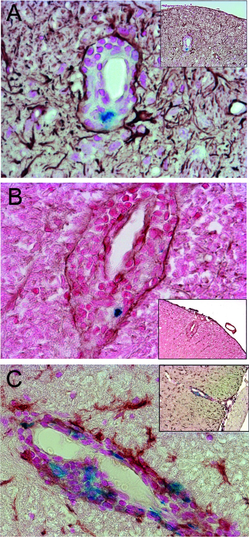 VSOP observed in perivascular-restricted spinal cord lesions with intact BBB ( A ) GFAP immunostaining (brown) shows astrocyte end foot processes surrounding a lesion with immune infiltrates (stained with Nuclear Fast Red) and including VSOP (blue). ( B ) Immunostaining for laminin (brown) shows vascular endothelium and glia limitans of a perivascular lesion, along with infiltrating cells and VSOP (blue). ( C ) Immunostaining for iba-1 (brown) shows the presence of microglia in CNS parenchyma, and activated microglia/macrophages associated with VSOP (blue) located in the perivascular lesion. Original magnification: ( A – C ) ×200.