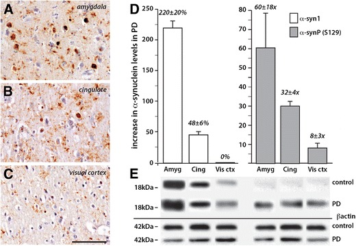 Increased levels of total and S129 phosphorylated α-synuclein in PD brain. a – c Peroxidase immunohistochemistry of brain sections from the same PD case showing the regional density of Lewy pathology as revealed by immunohistochemistry using phosphorylated α-synuclein antibody and counterstained with cresyl violet. Scale in c = 100 μm and is equivalent for a and b . Severe pathology is observed in the amygdala ( a ) with moderate pathology in the anterior cingulate cortex ( b ). Neuronal inclusions are not observed in the visual cortex ( c ). d , e Quantitation ( d ) of Western blots ( e ) in the same three brain regions in the PD cases (represented as an increase over control levels) confirmed the regional changes noted histologically in PD and showed considerably more phosphorylated α-synuclein compared with total α-synuclein in each regions (note the percentage at left versus fold change at right in d ). Error bars = SEM