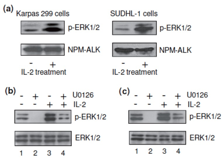 IL-2 augmented phosphorylation/activation of cellular <t>ERK1/2.</t> (a) Western blotting showed that the presence of IL-2 (40 units/ml) in cultures significantly augmented the activation of cellular p-ERK1/2 in Karpas 299 and SUDHL-1 cells but exerted no effect on the protein expression of NPM-ALK as an indicator of equal protein loading. (b) Exposure of Karpas 299 cells to the kinase inhibitor U0126 (5 μM) resulted in complete inhibition of the constitutive ERK1/2 phosphorylation (lanes 1 and 2 of upper panel). IL-2 treatment overcame this U0126-induced decrease of ERK1/2 phosphorylation (lanes 2 and 4 of upper panel). Total ERK1/2 protein levels showed no change in the presence of U0126 and/or IL-2 treatments (lower panel). (c) The similar results were also observed with SUDHL-1 cells under the same treatments. The results are representative of three separate experiments with similar findings.