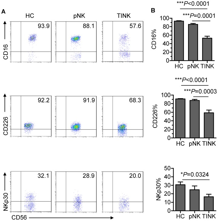 TINK cells display an inactive phenotype. (A) Representative flow cytometry analysis of the expression of NK-cell activation receptors (CD16, CD226 and NKp30) on gated CD56 + CD3 − TINK cells as compared with that on pNK cells from autologous patients and healthy control subjects. Quadrants depicted were set on isotype controls. (B) The frequency of CD16 + , CD226 + and NKp30 + NK cells within the above-mentioned three NK-cell populations (n = 15; mean±SEM).