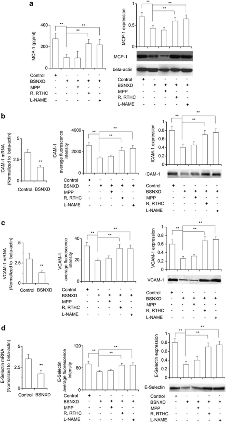 BSNXD suppresses adhesion molecules expression on HUVECs through ER β /NO/NF- κ B pathway. The primary HUVECs were exposed to control serum or 10% BSNXD-derived serum for 48 h; in the final 24 h culture the ox-LDL was added. The supernatants were collected, and MCP-1 concentrations were determined. The MCP-1 expression of HUVECs was determined by western blot analysis. The mRNA and protein expression levels of cell adhesion molecules (ICAM-1, VCAM-1 and E-selectin) were assessed by RT-PCR, western blot and FACS. The MCP-1( a ), ICAM-1 ( b ), VCAM-1 ( c ) and E-selectin ( d ) expression was greatly decreased after treatment with the 10% drug-derived serum. NOS inhibitor (L-NAME), ER β antagonist (R, RTHC) other than ER α antagonist (MPP) could block these effects induced by the drug-derived serum. Data are expressed as mean values±S.E.M. ( n =6). * P