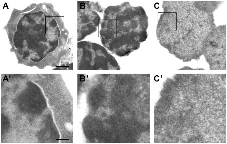Electron microscopic analysis of the insoluble 3C material from liver cells at different steps of the 3C procedure. After formaldehyde cross-linking ( A and A' ), after isolation of nuclei and extraction with 0.3% SDS followed by 1.8% Triton X-100 ( B and B' ) and after digestion with HindIII restriction endonuclease followed by extraction with 1.6% SDS ( C and C' ). Panels below show the enlarged framed region of the above images. Scale bars: 1 µm (A–C) and 250 nm (A'–C').