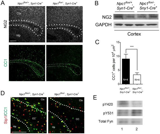 Neuron-specific deletion of Npc1 leads to blockade of oligodendrocyte maturation. (A) NG2 (to mark OPCs) and CC1 (to mark mature oligodendrocytes) staining in the corpus callosum of P16 Npc1 flox/− , Syn1-Cre + and control mice. Bar, 200 µm. (B) Western blot of NG2 expression levels from cerebral cortex homogenates of P16 Npc1 flox/− , Syn1-Cre + mice and controls. GAPDH controls for loading. (C) Quantification of CC1 + cell number in the corpus callosum of P16 Npc1 flox/− , Syn1-Cre + mice and controls. Data are mean +/− SD. *** P