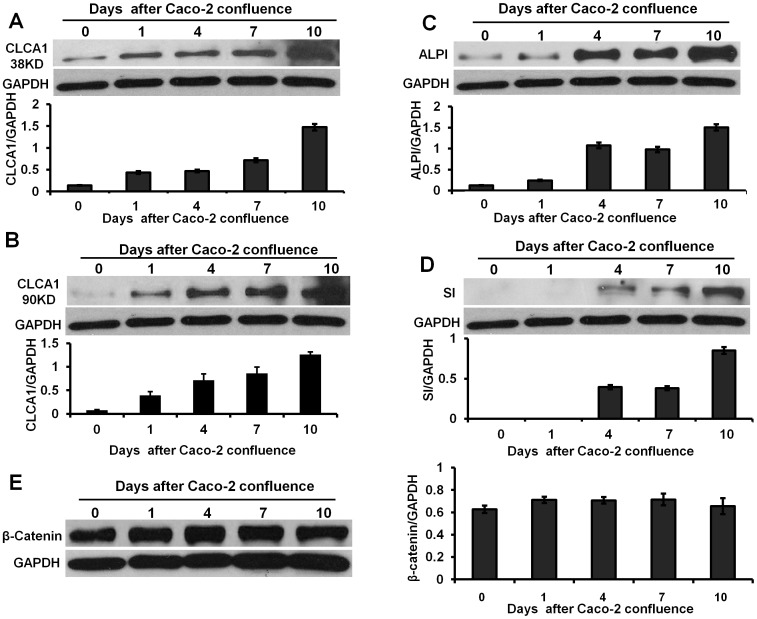 Expression of CLCA1, ALPI and sucrase-isomaltase was upregulated during spontaneous differentiation of Caco-2 monolayer. A and B. Expression of CLCA1 subunits (38 KD and 90 KD) were up-regulated after 24 hour of confluent culture and reached a peak at 10 days of culture. C. ALPI as a marker of Caco-2 cell differentiation was up-regulated significantly after 4 days of confluent culture. D. Expression of sucrase-isomaltase (SI), another cell differentiation marker, also was increased significantly after 4 days of confluent culture. E. Expression of β-catenin was enhanced slightly over time in culture. The histograms in A to E show the relative intensity of CLCA1, ALPI, SI and β-catenin expressed as a ratio with respect to the GAPDH control. All results were analyzed from three independent experiments.