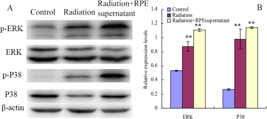 Electromagnetic fields and retinal cells can affect the phosphorylation of ERK1/2, P38, Akt and JNK in human scleral fibroblast cells. Effect of exposure to ELF-EMFs on the phosphorylation of ERK1/2, P38, Akt and JNK in HFSFs treated with RPE supernatant or not. A : Western blot analysis was performed using p-ERK1/2, p-p38, ERK1/2, p38, and β-actin antibodies, respectively. B : Densitometric quantification of Phosphorylation levels were obtained by optical density (O.D.) of protein bands normalized with O.D. of β-actin band. Values (mean±SD, n=3) were expressed as relative expression levels. A quantitative analysis was performed by comparison with the untreated control. The double asterisk stands for p