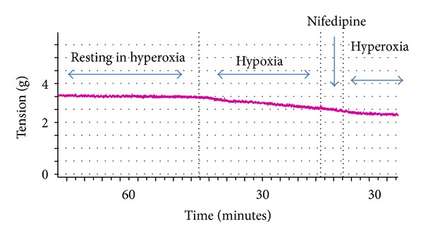 Effect of Nifedipine on the vasoconstrictive response to hyperoxia.
