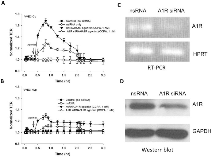 A1R is involved in adenosine-induced VVEC barrier function. Effect of A1R siRNA on CCPA-induced increase in TER in VVEC. ( A, B ) VVEC were incubated with A1R specific siRNA or non-specific siRNA for 48 h and then cells were stimulated with CCPA (1 nM) in TER measurement assay. The depletion of A1R mRNA and protein was confirmed by RT-PCR ( C ) and the Western blot analysis with anti-A1R antibody. ( D ). Results are presented as mean ± SE from three independent experiments.