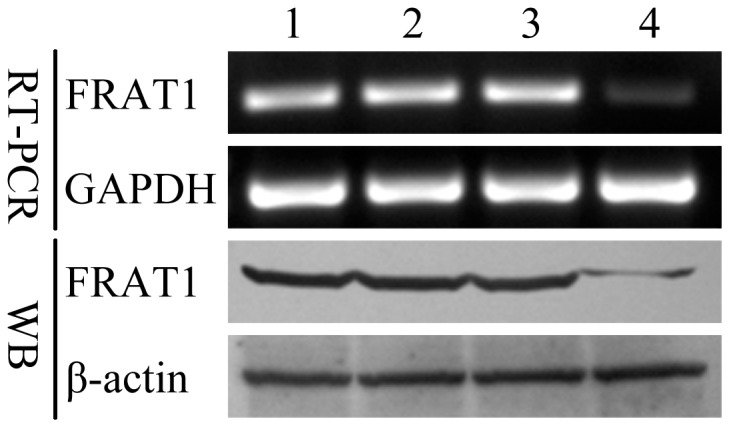 RNA interference reduced the expression of FRAT1 in U251 cells. Down-regulation of FRAT1 mRNA and protein expression in U251-S cells as compared to the parental U251, U251-NC, and U251-neo control cell lines was confirmed by RT-PCR and Western blot (WB). GAPDH was amplified as an internal control for the RT-PCR, and β-actin levels were examined as a loading control for the Western blot. 1: parental U251 cells; 2: U251-NC; 3: U251-neo; 4: U251-S.