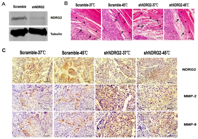 Down-regulation of NDRG2 affects the invasiveness of heat-treated HCC cells in vivo. (A) Expression level of NDRG2 in Scramble-HepG2 (transfected with silencing expression control plasmid) and shNDRG2-HepG2 (transfected with NDRG2 silencing plasmid) cells. HepG2 cells were transfected separately with the Scramble or shNDRG2 and then individually injected into the hind legs of the mice. After two weeks of implantation, mice in the heat-treated groups were subjected to a 45°C water bath for 30 min. Each experimental group contained 5 mice. Four weeks later, mice were sacrificed, and primary tumors were removed for histological examination. (B) Representative H E staining of histological sections revealed histological destruction in each group. Arrows point to invasion areas. Stars mark the locations of muscle. (C) Immunohistochemistry showed expression levels of NDRG2, MMP-2 and MMP-9 in the tumor tissues of each group. Bar = 30 µm (magnification 400×).