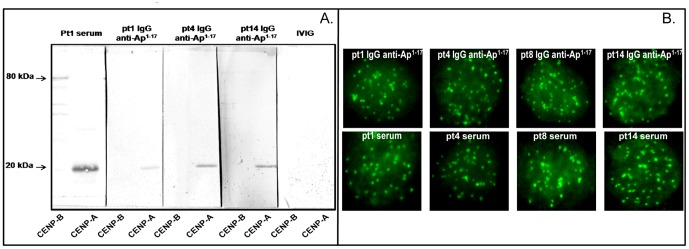 Reactivity of affinity-purified anti-Ap 1-17 Abs from 3 SSc patients. ( A. ) Recombinant human CENP-B and <t>CENP-A</t> proteins were loaded on alternative lanes (200 ng/lane) of a 12.5% SDS mini-gel under non-reducing conditions, transferred to a PVDF filter, and incubated for 3 h with affinity-purified anti-Ap 1-17 Abs from pt1, pt4 and pt14. Serum from pt1 and IVIG were used as controls. Bound Abs were detected using HRP-conjugated goat anti-human <t>IgG</t> and diaminobenzidine substrate solution. ( B. ) Centromere staining of pt1, pt4, pt8 and pt14 anti-Ap 1-17 IgG and of their corresponding serum (1∶100 dilution) to fixed permeabilized HeLa cells. Bound IgG was revealed by fluorescence staining with FITC-conjugated anti-human IgG (Fc portion). Cells were examined with a Nikon confocal microscope and a CCD camera (Nikon digital sight DS-U1), using a 60× Plan Apo VC objective.