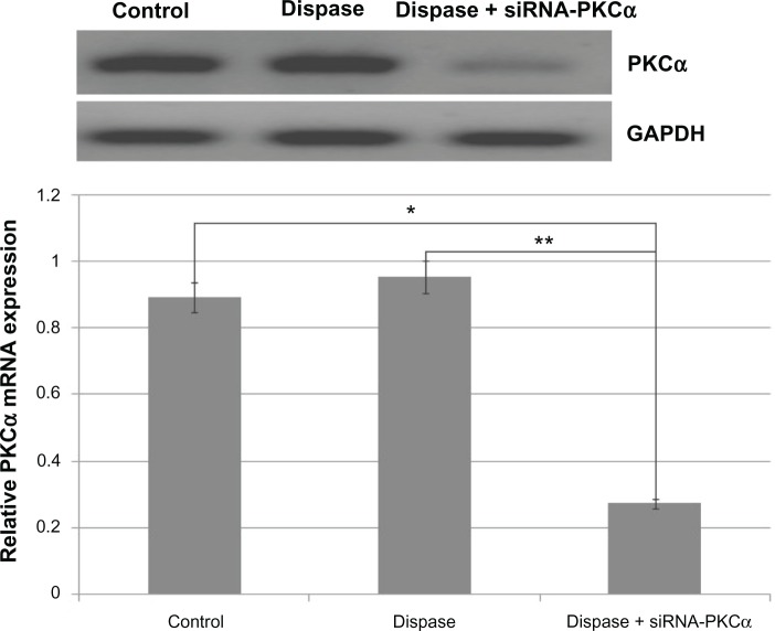 RT-PCR analysis after injection of 1500 nM siRNA-PKCα. Notes: PKCα messenger RNA was significantly down regulated following siRNA-PKCα injection when compared with those that were dispase-injected or in the control groups (ANOVA, ** P = 0.00018