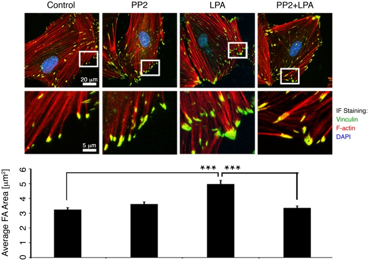 LPA stimulation increases FA size in a PP2-sensitive manner. Top: Deconvolution microscopy of FAs. Representative FAs are shown in an expanded view in the insets. All FAs in each cell, not just those featured in the insets, were analyzed to determine the mean FA area. Scale bars: top, 20 µm; bottom, 5 µm. Bottom: Mean FA area is significantly greater in cells stimulated with LPA (n = 82 cells). ***p