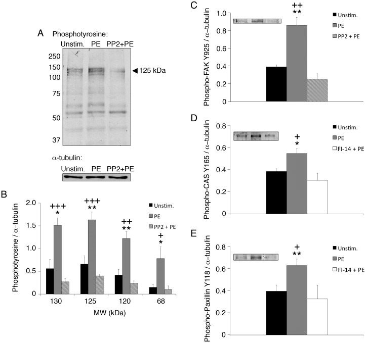 PE induces FAK and Src-mediated tyrosine phosphorylation of FA proteins in dVSMCs. (A) Typical blot, phosphotyrosine screening of mouse aorta tissue homogenates. PE increases tyrosine phosphorylation, and pre-treatment with Src inhibitor PP2 decreases tyrosine phosphorylation. (B) Mean densitometry of phosphotyrosine bands indicated. (C) Phospho-FAK Y925 increases in response to PE in a PP2-inhibitable manner, mean densitometry (n = 9 mice, 3 experiments). (D-E) Phospho-CAS Y165 and phospho-paxillin Y118 increase in response to PE in a FI-14-inhibitable manner, mean densitometry (n = 9 mice, 3 experiments). The brightness of the representative bands in Insets C-E has been uniformly altered for visual display; however, unaltered images were used for densitometry quantitation. *p