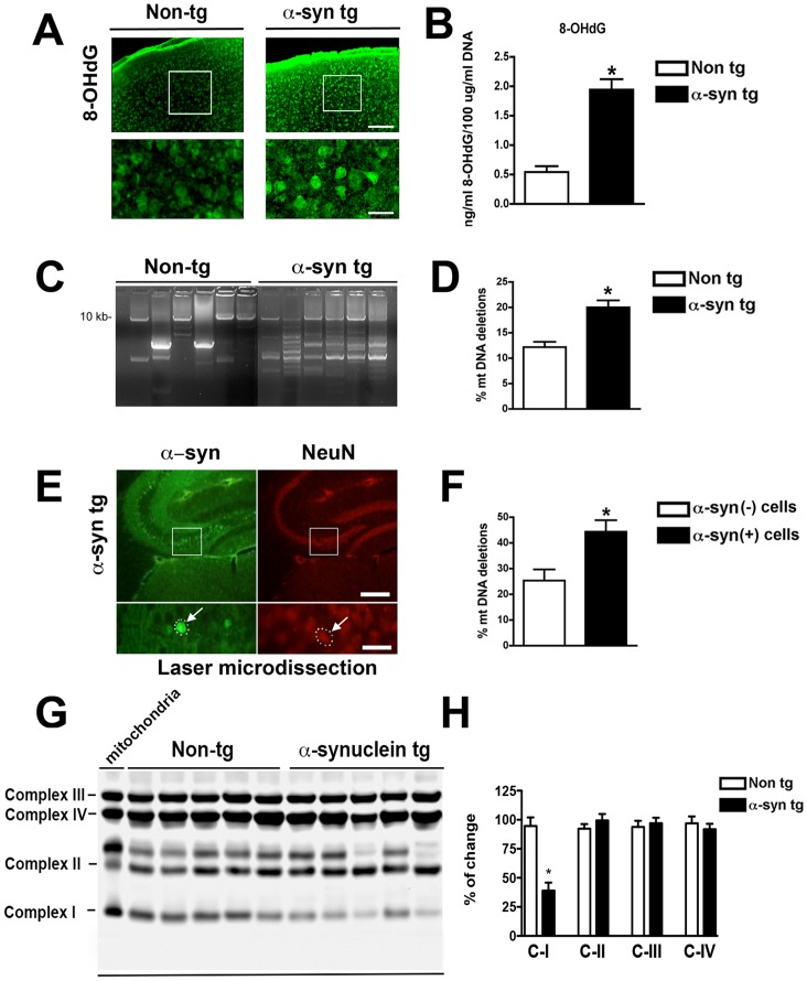 Alpha-synuclein overexpression results in oxidative DNA damage, alterations in respiratory chain complex I and mitochondrial DNA deletions in transgenic mice brains. (A) Immuno-histochemical detection of 8-OHdG suggesting increased oxidative DNA damage in α-Syn tg mice brains. (B) 8-OHdG levels were quantified on whole brain in α-Syn tg and non-transgenic control mice by ELISA. Scale bar represents 25 µm. (C) Long extension PCR showing large-scale mtDNA deletions in α-Syn tg mice. (D) Quantitative determination of mtDNA deletions by real-time PCR showing increased mtDNA deletion levels in the brain of α-Syn tg mice compared to control animals. (E) Immunostaining for α-Syn (green signal) and NeuN (red signal; arrow marks the identical neuron in double labeling) used for Laser Capture Microdissection (LCM). Scale bar represents 250 µm in the upper panel and 25 µm in the close-up lower panel. (F) Quantification of mtDNA deletion levels by real-time PCR on individual neurons with either intense or negative α-Syn immunoreactivity after LCM. (G) Western blot analysis of mitochondrial OXPHOS in brain homogenates from α-Syn tg and wt mice. Lane 1 shows mitochondrial proteins standard marker. (H) Densitometric analysis of the levels of Complexes I, II, III and IV. *p