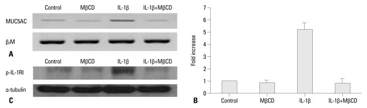 <t>MUC5AC</t> gene expression after treatment with MβCD. NCI-H292 cells were pretreated with 1% MβCD for 1 hour, after which the media was freshly changed and cells were incubated with IL-1β (10 ng/mL) for 24 hours. MUC5AC gene expression was examined by <t>RT-PCR</t> (A) and real time-PCR (B) analysis. β 2 M served as the internal control. The expression of p-IL-1RI was examined by Western analysis (C). α-tubulin served as the internal control. IL-1β induces expression of MUC5AC , but this increased expression is significantly decreased by MβCD treatment (IL-1β+MβCD) ( p