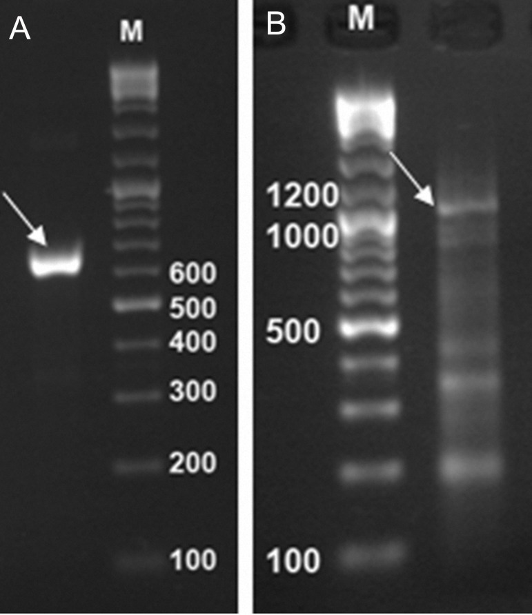 PCR products of the amplified fragments. Mtb32N fragment 632bp (A), Mtb39 fragment 1197bp (B), and 100 bp DNA size marker (M).
