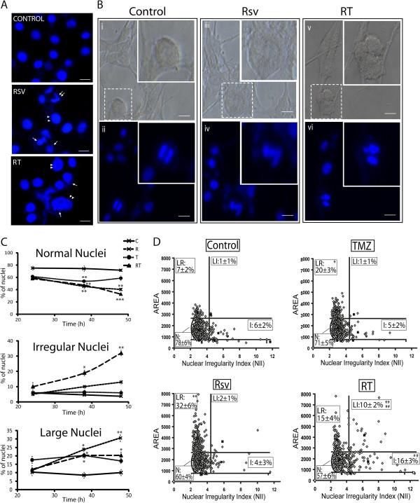 Inhibition of <t>TMZ-induced</t> G2 arrest by Rsv leads to mitotic catastrophe. U87 cells were treated with Rsv 30 μM, TMZ 100 μM or RT for 24, 38 and 48 h, followed by fixation and DAPI staining. (A) representative images of nuclei from cells treated with <t>DMSO</t> (control), Rsv for 38 h or RT for 48 h. Double arrows point to fragmented/irregular nuclei; single arrow points to micronuclei; double arrowheads point to enlarged nuclei; Scale bar: 6 μm; (B) representative visible and fluorescent images of nuclei from untreated cells showing a normal mitosis (i and ii) ; an abnormal chromosome condensation and mitosis, with cellular enlargement, in a cell treated with RT for 48 h (iii and iv) ; and a triple mitosis in a cell treated with Rsv for 48 h (v and vi) and. Scale bar: 10 μm; (C) direct counting of the percentage of nuclei presenting normal (top), irregular (mid) or large phenotype (bottom); *p