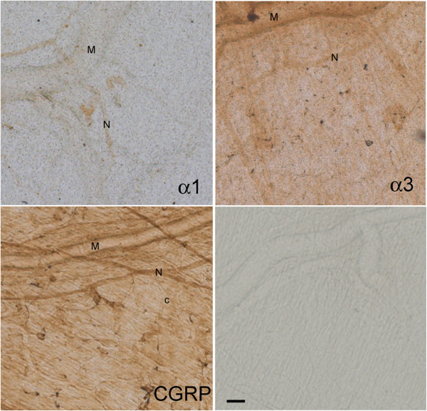 Representative images of meningeal areas showing DAB-stained Na,K-ATPase alpha-1, alpha-3, CGRP, and control, as indicated in the sections. M: branch of middle meningeal artery; N: trigeminal nerve fiber; c: capillary. Scale bar = 50 μm.