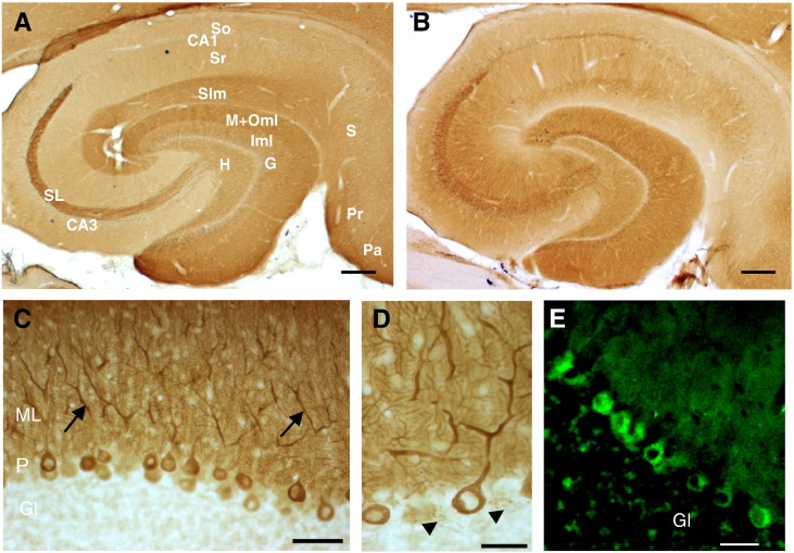 Immunohistochemical distribution pattern of RTN1A and RyR2 in rat hippocampus and cerebellum. Representative staining patterns for RTN1A (A,C,D) and RyR2 (B,E) on sections of rat hippocampus (A,B) and cerebellar cortex (C,D,E). In the hippocampus, immunoreactivity for both proteins is found in granule cells (G), mossy fiber axons, and in stratum lucidum (SL). In the cerebellum, RTN1A-immunoreactivity was confined to Purkinje cell bodies (P), their dendrites in ML (C; arrow) and axons (D; arrowheads). (E) Confocal immunofluorescent image showing RyR2 staining in Purkinje cells. Unlike RTN1A, RyR2 was also found in granule cell layer (Gl). Scale bars: A and B, 500 μm; H, hilus; G, Granule cell layer; So, stratum oriens; Sr, stratum radiatum; Slm, stratum lacunosum molecular; Iml, inner molecular layer; M + Oml, Middle outer molecular layer; CA1-3, Cornu ammonis; SL, stratum lucidum; S, Subiculum; Pr, Presubiculum; Pa, Parasubiculum.