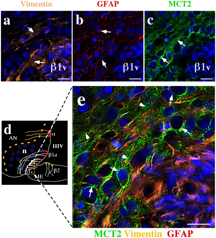 MCT2 is expressed in arcuate nucleus neurons. (a–c) Low magnification analysis of the basal hypothalamic area using anti-vimentin (a, orange), anti-GFAP (b, red) anti-MCT2 (c, green) antibodies. TOPRO-3 was used as nuclear stain (blue). (d) Schematic representation of the hypothalamic area shown in e. (e) High magnification analysis using quadruple labeling. MCT2 labeling was negative in β1v-tanycytes (positive for vimentin) or β1d-tanycytes (positive for GFAP) or astrocytes (positive for GFAP). The MCT2 reaction was concentrated in membranes of arcuate neurons (e, arrows), and neuronal processes (e, head arrows). AN: arcuate nucleus, III–V: third ventricle, ME: median eminence, n: neurons. Scale bar: 10 µm.