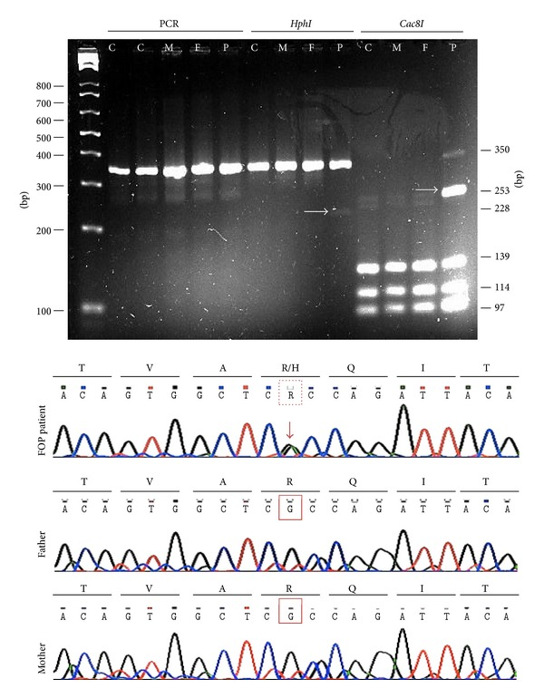 Genotyping in top panel: PCR amplification products were resolved by 3% agarose gel electrophoresis (C: control, M: mother, F: father, and P: FOP patient). As shown on the left, similar 350 bp products were amplified in controls, relatives, and the FOP case; however, after Cac8I digestion, a 253 bp fragment was observed exclusively in the FOP patient (marked with arrow). Bottom panel: a chromatogram showing the typical mutation at position 617, which causes an amino acid substitution of histidine for arginine at position 206 in the GS domain of ACVR1/ALK2.