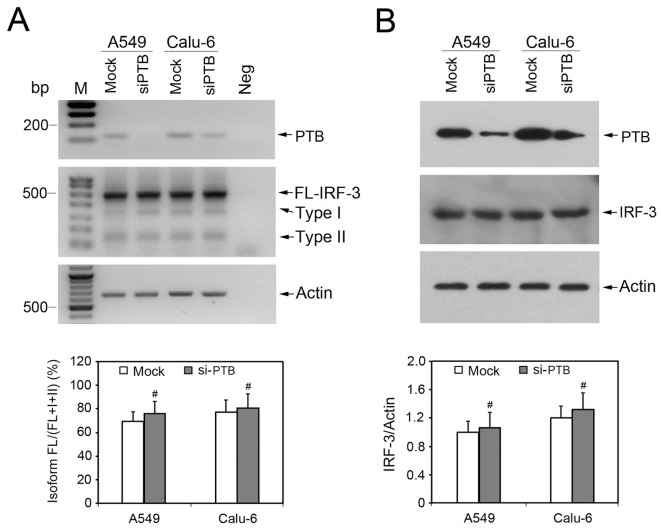 Depletion of PTB shows no effect on IRF-3 splicing pattern. Splicing factor PTB was depleted by specific siRNA transfection in human NSCLC cells A549 and Calu-6. The mismatched control siRNA was used as mock-transfected control. After siRNA transfection and subsequent Poly(I:C) stimulation, total cellular RNA and protein were collected and tested by semi-quantitative RT-PCR (A) and Western blot analysis (B) to examine the expression levels of target genes and IRF-3 splicing variants indicated on the right. For RT-PCR reactions, total RNA extracted from A549 cells without reverse transcription was used as negative control. For all RT-PCR and Western blot analysis, Actin was used as internal control.