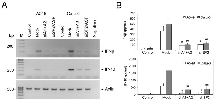 Depletion of hnRNP A1/A2 or SF2/ASF reduces IFNβ and IP-10 expression in human NSCLC cells. A549 and Calu-6 cells were performed specific siRNA-mediated knockdown of hnRNP A1/A2 or SF2/ASF. Mock, cells transfected with the mismatched control siRNA. Control, cells without specific or mock siRNA transfection and Poly(I:C) stimulation. (A) After siRNA transfection and subsequent Poly(I:C) stimulation, the mRNA expression of IFNβ and IP-10 genes was analyzed by semi-quantitative RT-PCR. Total RNA isolated from A549 cells without reverse transcription was used as negative control. (B) Secretion of IFNβ (top) and IP-10 (bottom) proteins was examined by ELISA assay. The value for each assay is presented as mean ± S.D. for three independent experiments. # P and ## P