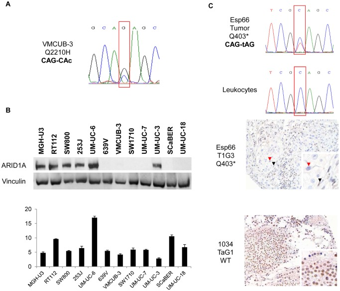 ARID1A mutations and expression in UBC. Panel A . A G > C transversion identified through Solexa resequencing, confirmed by Sanger sequencing of independent PCR products, leading to a predicted Q2210H substitution in VMCUB-3 cells. Panel B . Western blotting analysis in a panel of UBC cell lines identifies a subset with undetectable expression, including VMCUB-3. mRNA expression was analyzed by RT-qPCR; results are shown as values normalized with respect to the housekeeping gene HPRT . Panel C . A C > T mutation in codon 403, leading to a premature stop codon, was identified in a primary T1G3 tumor. The mutation was absent from matched normal leukocyte DNA. Lack of protein expression in the corresponding tumor tissue was confirmed using immunohistochemistry. The red arrowhead points to a tumor cell lacking ARID1A staining, whereas the black arrowhead indicates a positive stromal cell. For comparison, a TaG1 tumor with wild type ARID1A sequence is shown.