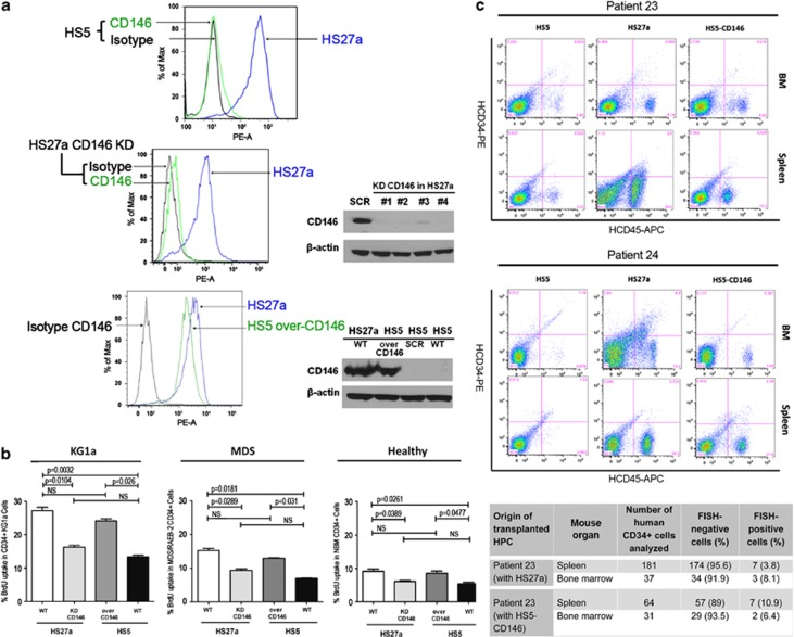Effect of CD146 expression in stroma on BrdU uptake by cocultured CD34+ hematopoietic cells in vitro , and on engraftment of CD34+ MDS marrow cells in NSG mice in vivo . ( a ) Flow cytometric analysis showed prominent expression of CD146 on HS27a, but not on HS5 stroma. Knockdown (KD) of CD146 in HS27a cells using four different siRNAs (no. 1–4 in comparison with a scrambled siRNA) reduced CD146 expression to levels comparable to those in HS5 cells. Conversely, overexpression of CD146 (over-CD146) in HS5 cells using a lentiviral construct (pLOC vector, over-CD146, in comparison to a scrambled vector (SCR)) increased CD146 expression to levels comparable to those in unmodified HS27a cells (see also Supplementary Figure S4b ; upper row). ( b ) BrdU uptake by hematopoietic cells after coculture with either unmodified HS27a stroma wild type (WT), HS27a cells with KD of CD146 (146 KD), or HS5 cells overexpressing CD146 (over-CD146), in comparison with unmodified (WT) HS5 cells. BrdU uptake was highest in KG1a cells, followed by MDS-derived CD34+ cells and CD34+ cells from healthy donors. Results of coculture with HS27a cells with KD of CD146 approached those with unmodified HS5 cells, whereas, conversely, BrdU uptake in coculture with CD146 overexpressing HS5 cells did not differ significantly from that in coculture with unmodified HS27a cells (Student's t -test; mean±s.e.m. of three experiments ). ( c ) Engraftment of CD45+ marrow cells from two patients with RAEB-2 and RAEB-1, respectively, coinjected with unmodified HS5 stroma (HS5), unmodified HS27a stroma (HS27a) or HS5 cells overexpressing CD146 (HS5-CD146), in marrow and spleen of NSG mice, determined at 5–7 weeks after transplantation. The table shows, in addition, the proportions of human clonal and non-clonal CD34+cells (from patient 23) in mouse marrows and spleens after coinjection with HS27a and HS5-CD146 cells (day 35), respectively. Additional data on FISH and flow cytometric analysis, as well as immunohis