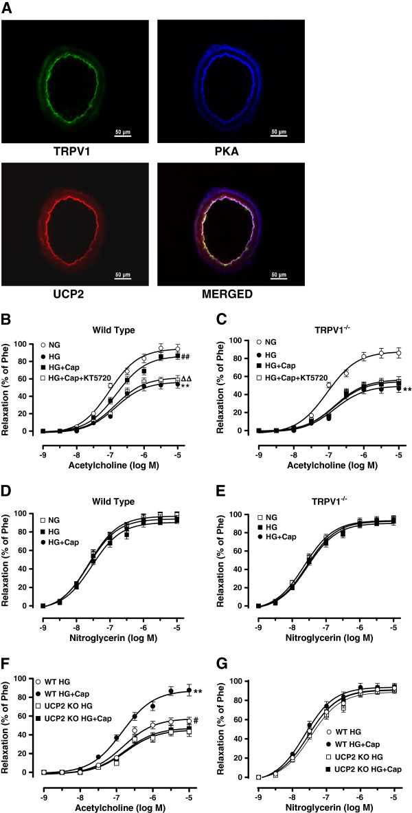 TRPV1 activation ameliorates high-glucose-induced endothelial dysfunction in a UCP2-dependent manner. A : Representative immunofluorescence images showing the co-expression of TRPV1, PKA and UCP2 in the aortas from wild type mice, particularly in the endothelium (Bar denotes 50 μm). B and C : Acetylcholine (1 nmol/L to 10 μmol/L)-induced endothelium-dependent relaxation of isolated aortic artery rings from wild type and TRPV1 -/- mice, pre-incubated with normal-glucose for 12 hours (NG, glucose 5.5 mmol/L), high-glucose (HG, glucose 30 mmol/L), HG+capsaicin (HG+Cap, Cap 1 μmol/L), HG+Cap+KT5720 (2 μmol/L); **P