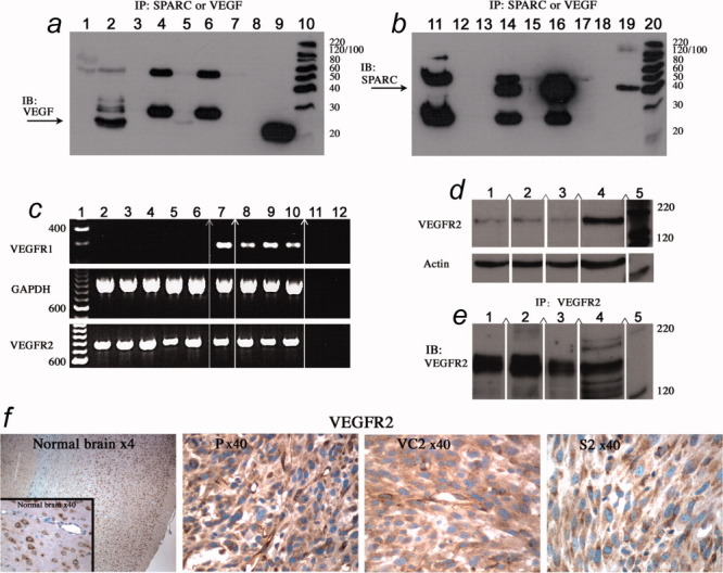 Assessment of SPARC, VEGF and VEGFR expression. ( a and b ) Conditioned media (CM) from control (VC2) and SPARC-transfected (S2) spheroids were subjected to immunoprecipitation (IP) with antibody to (Ab) to either VEGF or SPARC, followed by Western immunoblotting (IB) with anti-VEGF antibody ( a ) or anti-SPARC antibody ( b ). (Panel a ) Lane 1: VEGF antibody alone (control), Lane 2: anti-VEGF IP of VEGF protein (control), Lane 3: IP of VC2-CM minus primary Ab (control), Lane 4: anti-SPARC IP of VC2-CM, Lane 5: anti-VEGF IP of VC2-CM, Lane 6: anti-SPARC IP of S2-CM, Lane 7: anti-VEGF IP of S2-CM, Lane 8: empty lane, Lane 9: VEGF protein (for size standard) and Lane 10: molecular weight standard. Arrow: VEGF antibody immunoprecipitated VEGF only from control VC2-CM. (Panel b ) Lane 11: SPARC antibody alone (control), Lane 12: empty lane, Lane 13: IP of VC2-CM minus primary Ab (control), Lane 14: Anti-SPARC IP of VC2-CM, Lane 15: Anti-VEGF IP of VC2-CM, Lane 16: Anti-SPARC IP of S2-CM, Lane 17: anti-VEGF IP of S2-CM, Lane 18: empty lane, Lane 19: SPARC protein (for size standard) and Lane 20: molecular weight standard. Arrow: SPARC antibody immunoprecipitated SPARC only from control VC2- and S2-CM. Bands at 55 and 23 KDa are IgG heavy and light chains. Note that no coimmunoprecipitation was observed using either antibody, even when blots were overexposed as illustrated. ( c ) RT-PCR analysis of VEGFR1 (Flt-1) and VEGFR2 (Flk-1). (Top gel) Lane 1: molecular weight standard, Lane 2: control parental U87 cells, Lane 3: vector control VC1, Lane 4: vector control VC2, Lane 5: SPARC-transfected clone S1, Lane 6: SPARC-transfected clone S2, Lane 7: normal brain N141, Lane 8: astrocytoma A203, Lane 9: anaplastic astrocytoma AA152, Lane 10: GBM373, Lane 11: −RT-control, Lane 12: H 2 O Control reaction without cDNA. (Middle gel) GAPDH control coamplification of GAPDH in the same samples used with VEGFR1 primers to confirm integrity of cDNA. Note the lack of VEGFR1 in U87-transfected cells. (Bottom gel) VEGFR2 RT-PCR analysis of the same samples as the top gel. ( d ) Western blot analysis of VEGFR2. Lane 1: SPARC-transfected clone S2, Lane 2: vector-transfected control VC2, Lane 3: parental U87, Lane 4: THP-1-positive VEGFR2 control and Lane 5: molecular weight standard. The VEGFR2 blot was stripped and reprobed for actin as control for loading. ( e ) Immunoprecipitation (IP) of VEGFR2 for the same samples in panel b , followed by Western blotting (IB) for VEGFR2. VEGFR2 is present in U87 parental and transfected cells. ( c – e ) (∧) Indicates that the signal is on the same gel but moved closer. ( f ) VEGFR2 immunohistochemistry in normal rat brain, 41 controls (P, VC2) and SPARC-transfected S2 tumor. Magnifications as indicated. VEGFR2 transcript and protein are present in the U87 control and SPARC-transfectants.