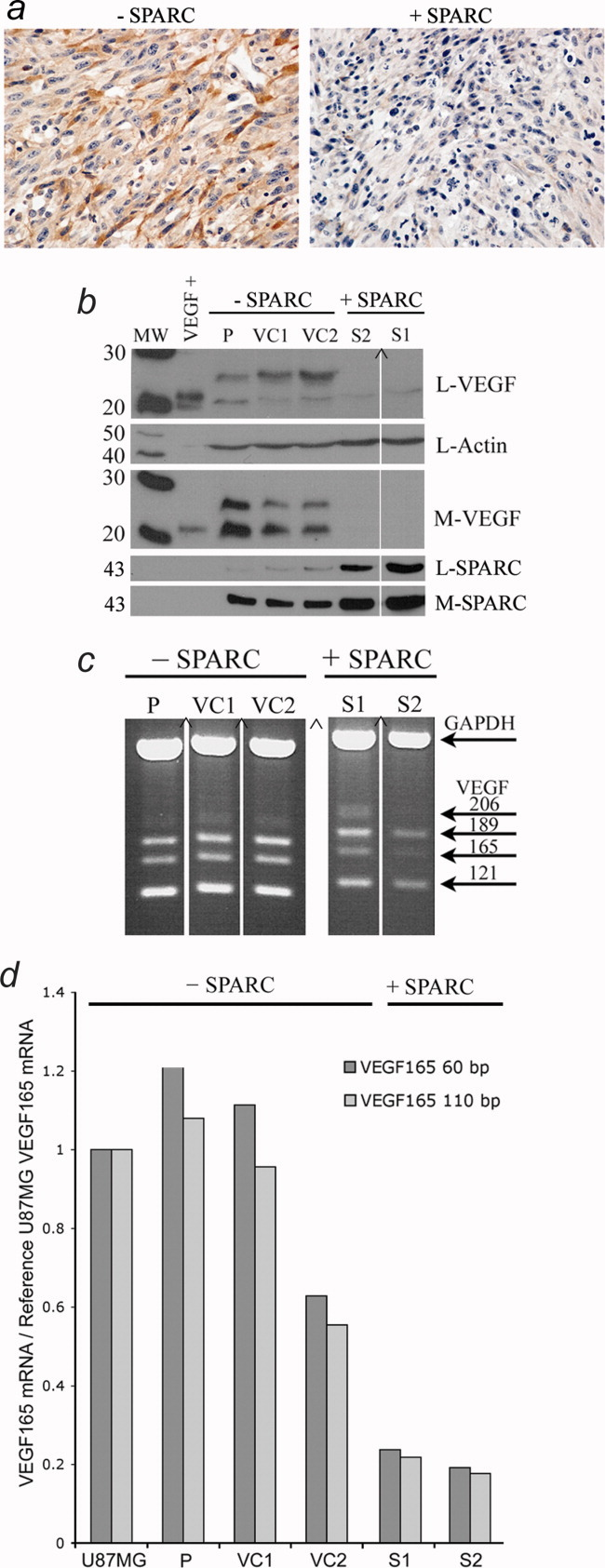 Immunohistochemical, Western blot and RT-PCR analysis of VEGF protein and transcripts in control- (−SPARC) and SPARC- (+SPARC) transfected clones. ( a ) Representative tumor sections immunohistochemically stained for VEGF expression (×40). Note the decreased VEGF expression in the SPARC-expressing tumors. ( b ) Control and SPARC-expressing spheroids were assessed for VEGF and SPARC expression and secretion by Western blot analysis. L: lysate, M: medium. The same blot was used for all lysate analyses. Actin detection was used as a loading control. Note that increased SPARC expression correlated with decreased VEGF expression and secretion. ( c ) RT-PCR was performed to detect all 4 major VEGF isoforms as indicated. ( b and c ) (∧) Indicates that the signal is on the same gel but moved closer. ( d ) Real-time RT-PCR analysis of the VEGF165 isoform. Note that enhanced SPARC expression is associated with decreased VEGF165 transcript abundance. P-parental clonal U87MG-derived cell line, VC1- and VC1-vector control cell lines, S1- and S2- SPARC-transfected cell lines.