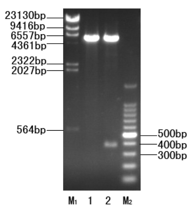 Restriction enzyme digestion of the recombinant plasmid pET32a-CtCVNH by EcoR I and Hind III. M 1 : λ- H ind III digest DNA marker. 1, pET32a (+); 2, pET32a-CtCVNH; M 2 , 100 bp DNA ladder marker.