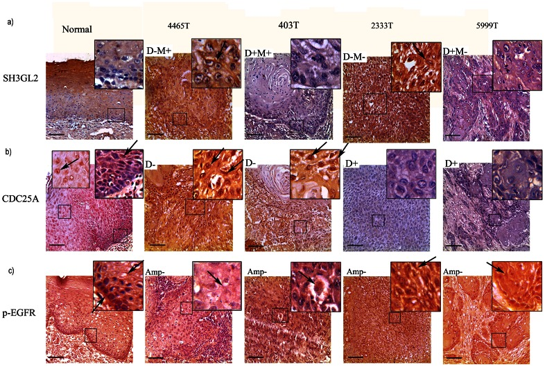 Immunohistochemical analysis of SH3GL2, CDC25A and p-EGFR. a) Distinct cytoplasmic/membrane expression of SH3GL2 in the basal lining/parabasal cells of normal oral epithelium and primary HNSCC samples were seen. Spinus layer showed high expression of the gene. #403T and #5999T showed low expression, #4465T and #2333T showed intermediate/high expression expression level of SH3GL2. b) Differential nuclear and cytoplasmic expression of CDC25A was seen in basal/parabasal/spinus layer cells of normal oral epithelium and tumor samples. Low cytoplasmic and nuclear expression of CDC25A was evident in basal and parabasal cells of normal epithelium, but higher expression in spinus layer. #2333T and #5999T showed low expression, #4465T and #403T showed high/intermediate nuclear and cytoplasmic expression level of CDC25A. Arrows pointed to nuclear/cytoplasmic/membrane expression. c) Distinct cytoplasmic and membrane bound expression of p-EGFR was seen in normal oral epithelium. The expression was high in basal layer but gradually decreased in parabasal and spinus layer. Arrows pointed to cytoplasmic/membrane/nucleus expression. #2333T and #5999T showed high expression, #4465T and #403 showed reduced expression of p-EGFR. Magnification of tissue samples is 20X, and for inset in tissues magnification is 40X. Scale bars in tissue sections represent 100 µm.