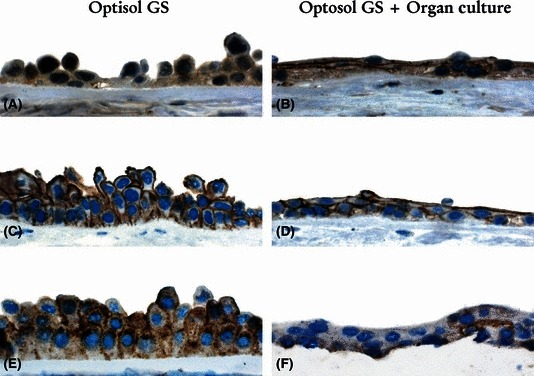 Immunostaining of adherens, tight and gap junction-associated markers Occludin (A, B), E-cadherin (C, D) and Connexin-43 (E, F) after storage in Optisol GS and after Optisol GS + EBOC. EBOC, Eye Bank Organ Culture.