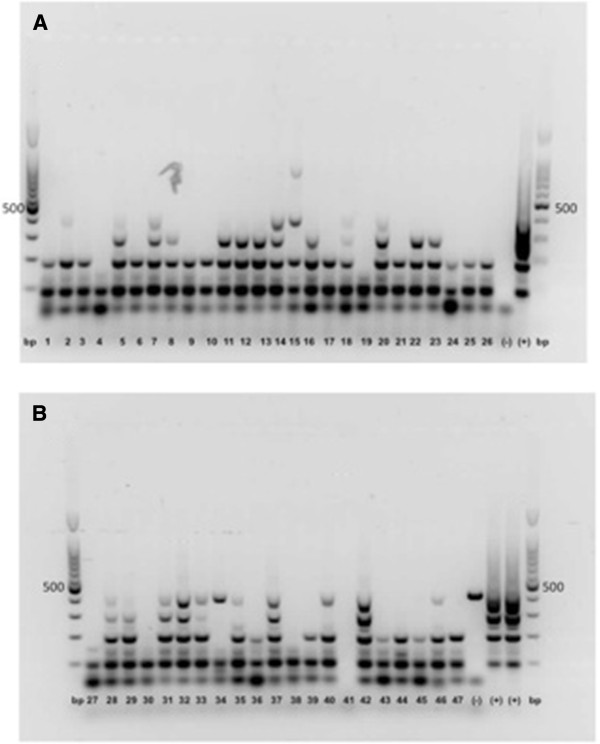 Quality control for breast carcinomas and fibroadenomas. Multiplex PCR for GADPH. ( A ) Lines 1−9 and 19−26 breast carcinomas; 10−18 fibroadenomas. ( B ) Lines 27, 37−45 breast carcinomas; 19−30, 46 and 47 fibroadenomas. Base pairs (bp); control positive (+), HCMV strain AD-169 (ATCC® VR-583); control negative (−), DNA white blood cells from healthy individual (blood donor) and reaction mix without DNA.
